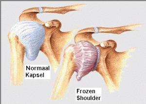 Het schoudergewricht