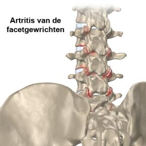 Artritis-van-de-facetgewrichten