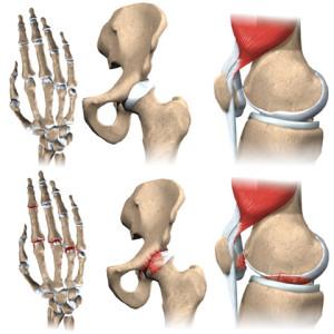 arthritis hand, heup, knie